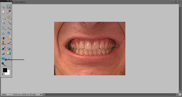 как_отбелить_зубы_в_фотошопе_kak_otbelit_zuby_v_fotoshope