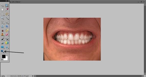 как_отбелить_зубы_в_фотошопе_kak_otbelit_zuby_v_fotoshope_1