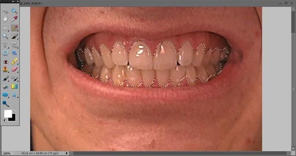 как_отбелить_зубы_в_фотошопе_kak_otbelit_zuby_v_fotoshope_10