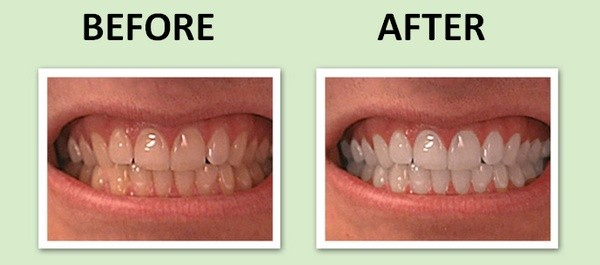 как_отбелить_зубы_в_фотошопе_kak_otbelit_zuby_v_fotoshope_12