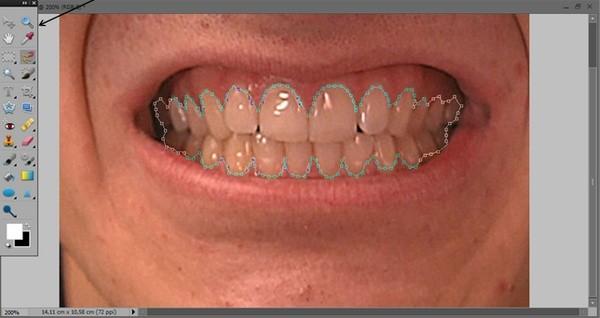 как_отбелить_зубы_в_фотошопе_kak_otbelit_zuby_v_fotoshope_9