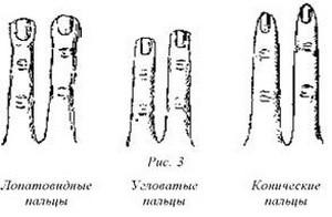 форма_пальцев_и_характер_forma_palcev_i_kharakter