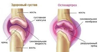 Остеоартроз_плечевого_сустава_osteoartroz_plechevogo_sustava_1