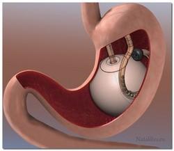 Операция по шунтированию желудка