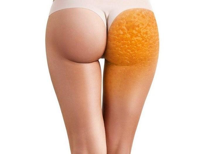 Эффективная диета для борьбы с целлюлитом